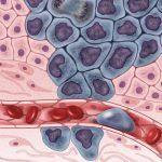 Matching Cancer Patients to Targeted Drugs: Two New Tools