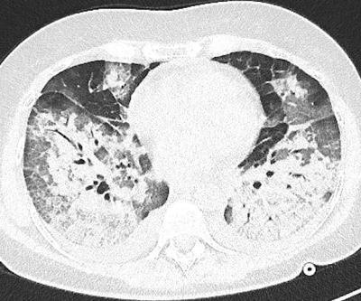 CT Useless for COVID-19 Diagnosis, Study Affirms