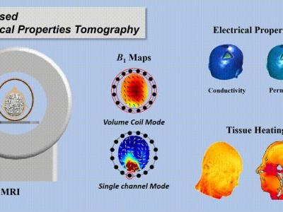 Electrical Properties Tomography Based on B1 Maps in MRI: Principles, Applications, and Challenges