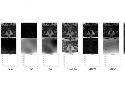 Context Dependent Fuzzy Associated Statistical Model for Intensity Inhomogeneity Correction from Magnetic Resonance Images