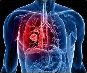 At-Home Ventilator Treatment Reduces Hospital Re-admissions in Severe Lung Disease