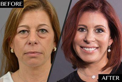 How a Facebook Connection Prompted This Woman's Major Makeover