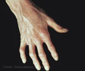 New Light Therapy Device can Treat Finger Ulcers in Systemic Sclerosis Patients