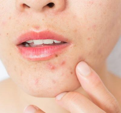 Birth control pills can help treat acne, but some types are better than others