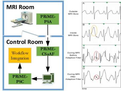 Physiological Recording in the MRI Environment : MRI-Compatible Hemodynamic Recording System