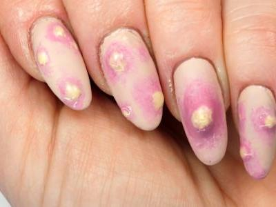 Forget ghosts, this pus-filled pimple nail art is the most terrifying thing on the internet