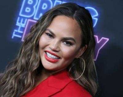 Chrissy Teigen's Instagram About Botoxing Her Armpits Is The Type Of TMI You Love Her For