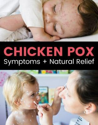 Chicken Pox Symptoms + 4 Natural Ways to Find Relief
