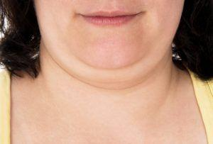 KYBELLA®: An Effective Non-Surgical Treatment for a Double Chin