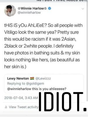 Winnie Harlow Shuts Down Dude Who Assumed Another Vitiligo Woman's Nudes Were Hers