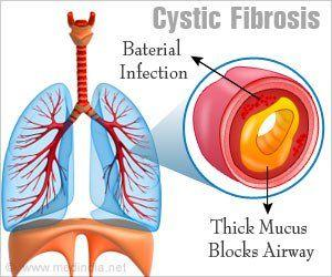 New In-vitro Model to Help Develop Drugs for Cystic Fibrosis