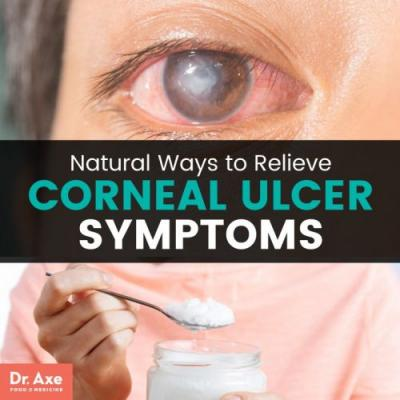 What Is a Corneal Ulcer? + Relieve Symptoms 11 Natural Ways