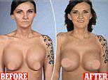 Mother reveals how burst implant left her breasts drooping