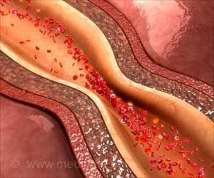 Wine may Reduce Plaque Build-up in Arteries of Diabetic Patients