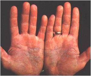 Impact of Solvents on the Skin