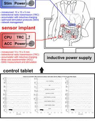 Accelerometer Based Assessment of Intestinal Peristalsis: Towards Miniaturized Low Power Solutions for Intestinal Implants