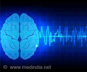 Dementia Risk Higher in Atrial Fibrillation Patients With Carotid Artery Disease