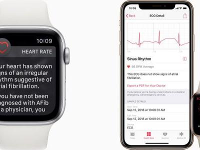 How to set up Apple Watch irregular heart rate notifications