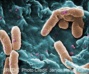 Body's Natural Defenses Help Fight Against Klebsiella Pneumoniae