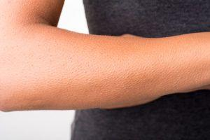 Why Do We Yawn, Hiccup and Get Goosebumps?