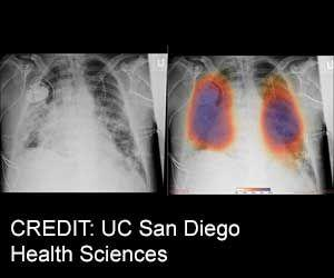 Artificial Intelligence Used For COVID-19 Lung Imaging Analysis