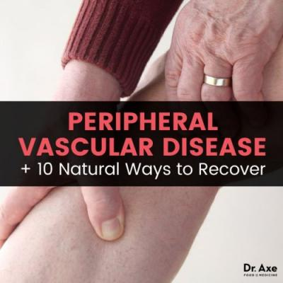 Peripheral Vascular Disease + 10 Healthy Lifestyle Changes