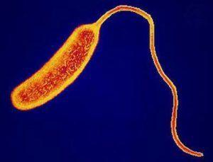 Sequencing of Historical Cholera Sample Surprises Sanger Scientists