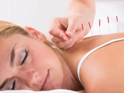 Acupuncture found to be effective at relieving side effects of traditional treatments in breast cancer patients, according to study
