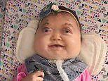 'Miracle' girl born with ultra-rare genetic deformity defies parents and doctors