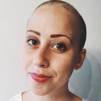 A Young Cancer Survivor Tells Us 8 Beauty Ingredients She'll Never Use Again