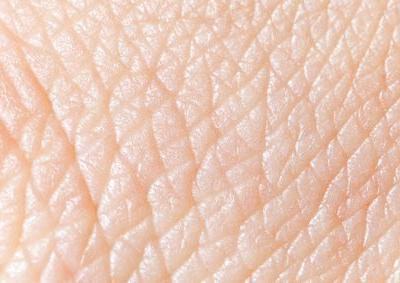 Stratatech Begins Test of Engineered Skin for Diabetic Foot Ulcers