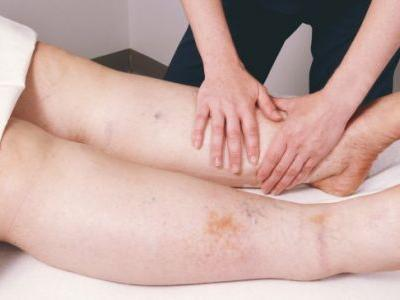 Lymphedema + 7 Natural Ways to Manage Lymphedema Symptoms