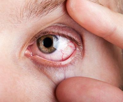 Oyster Point Gets $93M To Clear Up Dry Eye With a Nasal Spray