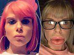 Mother, 29, claims filler treatment left her with 'sausage lips'