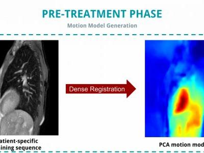 Model-based Sparse-to-dense Image Registration for Realtime Respiratory Motion Estimation in Image-guided Interventions