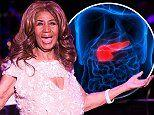 Why few survive the pancreatic cancer that killed Aretha Franklin