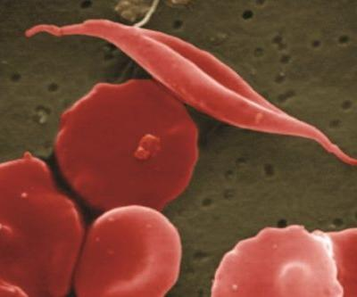 Global Blood's Sickle Cell Drug Wins FDA Approval Ahead of Schedule