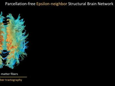 Topological Properties of the Structural Brain Network in Autism via ε-neighbor Method
