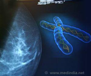 Looking Out for 'Signature' Causes of BRCAness in Breast Cancer Cells
