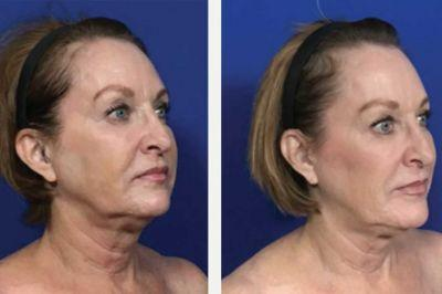 Are Thread-Lifts the New Face-Lift? What You Need to Know