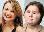 Suicide survivor becomes youngest person ever to receive a face transplant at 21