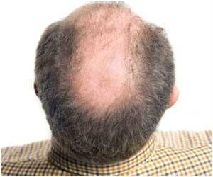 Baldness and Premature Graying in Men: Risk of Heart Disease