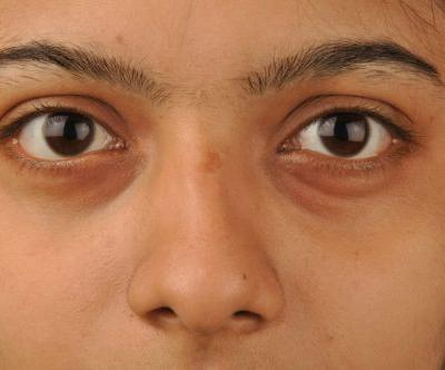 A Quick Guide to Reduce Puffy Eyes and Dark Circles- Whitney Marquise
