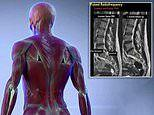 Zapping the back with electrical currents reduces pain from a slipped disc
