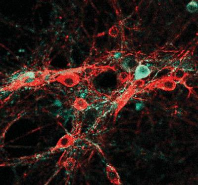 Brains Improved by Graphene Are on the Horizon