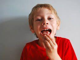 SMRT Sequencing Enables Characterization of Cavities-Causing Bacteria in Children