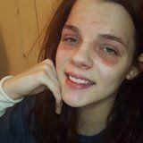 """Why This Makeup Artist Is Flaunting Her Eczema on Instagram: """"I Am Not My Skin Condition"""""""