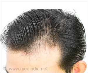 Researchers Regrow Hair on Damaged Skin: Study