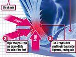 Cancer therapy rays that blast away heel pain which affects an estimated SIX MILLION Britons