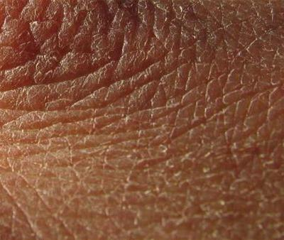 What Causes Dry Skin All Over Your Body?